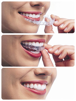 Invisalign Invisible Braces in Clayton and Trotwood