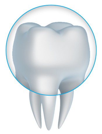 CEREC Dental Crowns in Dayton